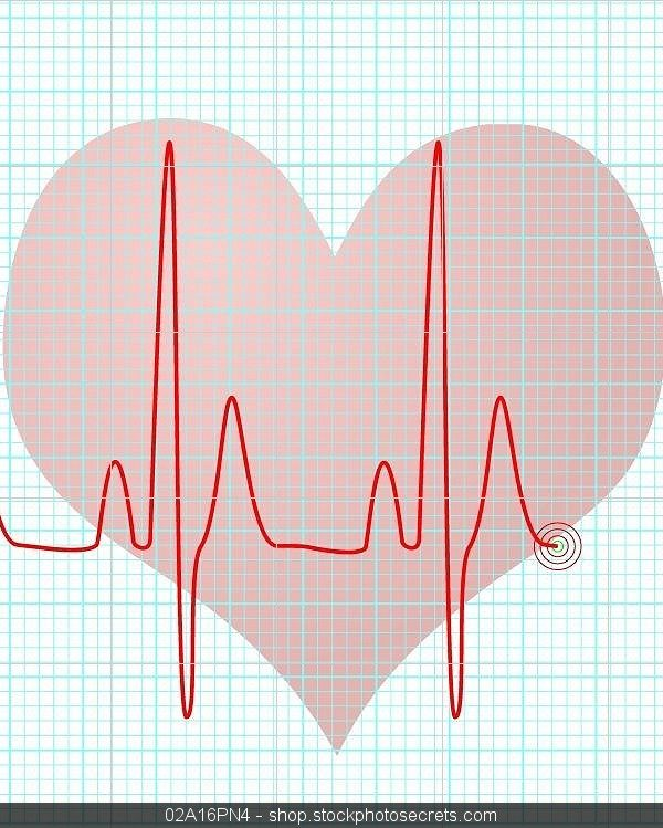 Episode 62: Heart Rate Variability & Trauma